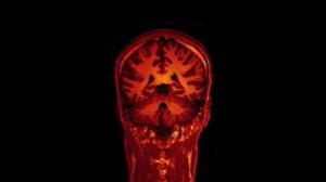 brain Opérationnel.brain scan